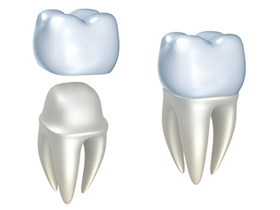 Dental Crowns at Park West Dental