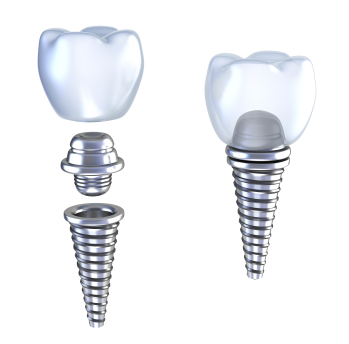 Dental Implants at Park West Dental
