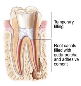 Root Canal Therapy at Park West Dental