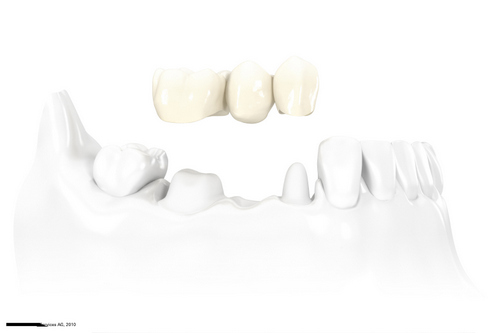 Dental Bridges at Park West Dental