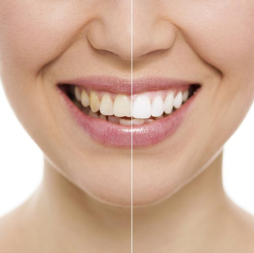 Teeth Whitening at Park West Dental